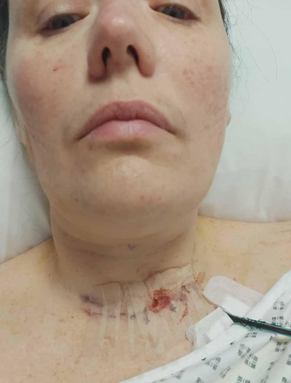 The mum-of-three had two operations on her thyroid. (PA Real Life)