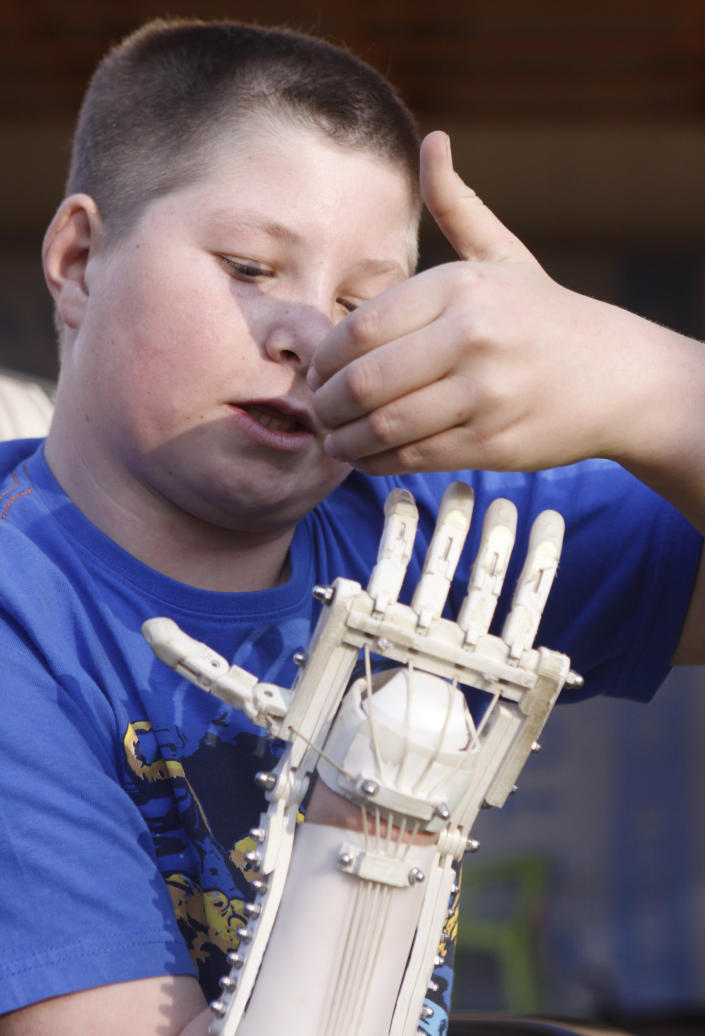 In this photo taken Friday, Aug. 23, 2013 Dylan Laas shows how his Robohand works during an interview with the Associated Press in Johannesburg. Laas who was born with Amniotic Band Syndrome, got his hand from carpenter, Richard van As who lost four fingers to a circular saw two years ago and started work on building the Robohand after seeing a video posted online of a mechanical hand made for a costume in a theater production. Since then van As has fitted Robohands on about 170 people, from toddlers to adults. (AP Photo/Denis Farrell)