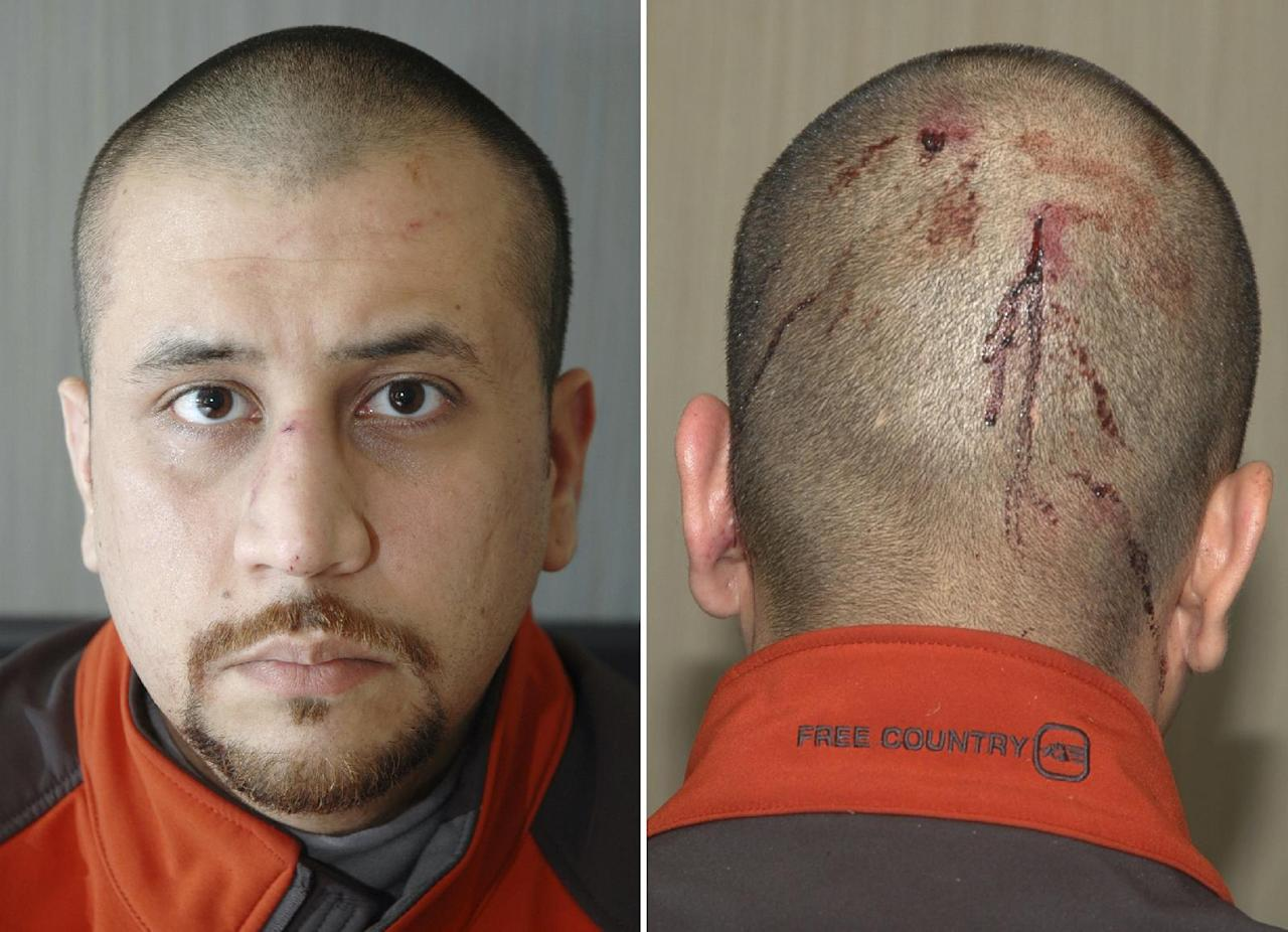 This combo made from Feb. 27, 2012 photos released by the State Attorney's Office shows George Zimmerman, the neighborhood watch volunteer who shot Trayvon Martin. The photo and reports were among evidence released by prosecutors that also includes calls to police, video and numerous other documents. The package was received by defense lawyers earlier this week and released to the media on Thursday, May 17, 2012. (AP Photo/State Attorney's Office)