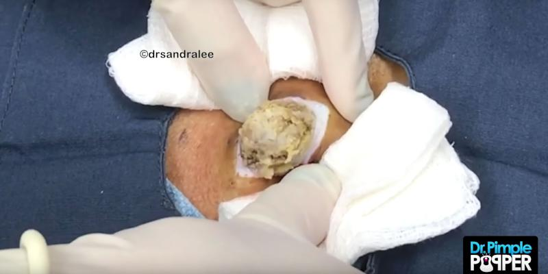Just a Disgusting Cyst-Popping Video