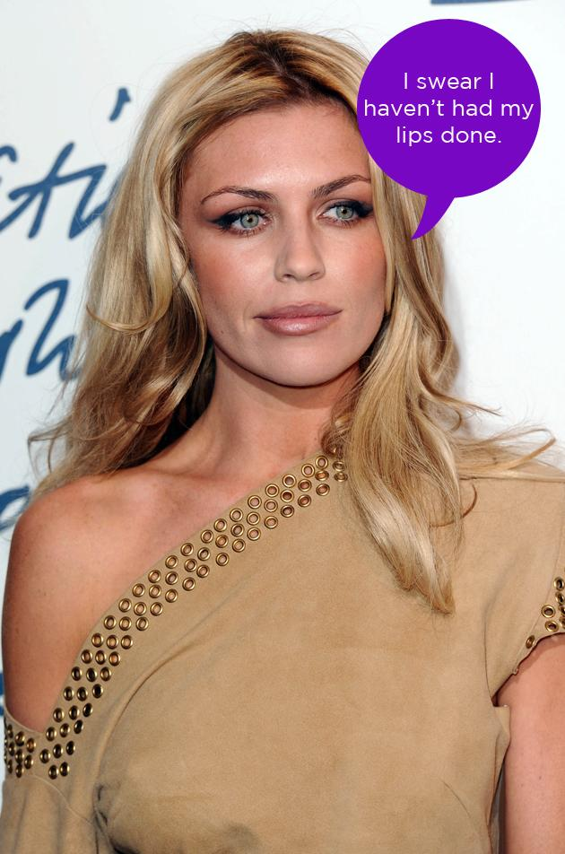 Abbey Clancy dismissed rumours that she's had collagen injections in her lips to plump them up. She tweeted this comment along with the hashtag #foralltheintelligentpeopleoutthere. Well, that told us then.