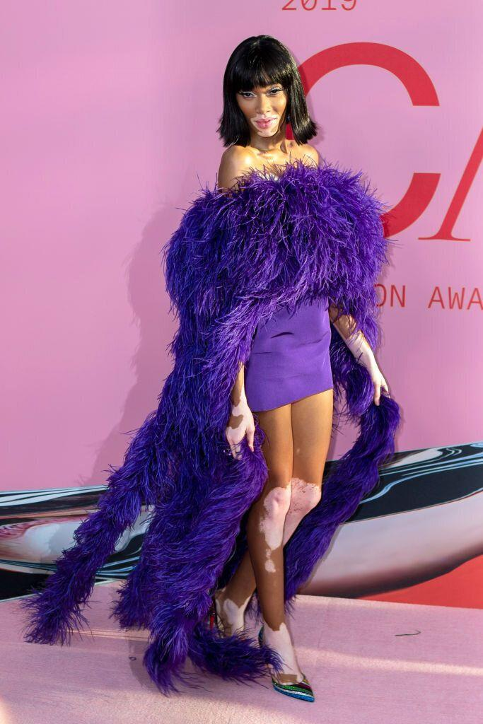 Winnie Harlow at the CFDA Fashion Awards in New York City. [Photo: Getty]