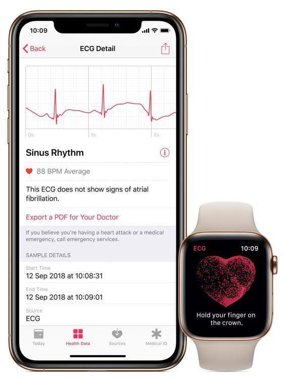 Apple Watch: As smart watch's smart heart tracking features are turned on, Apple explains its turn to health and wellness