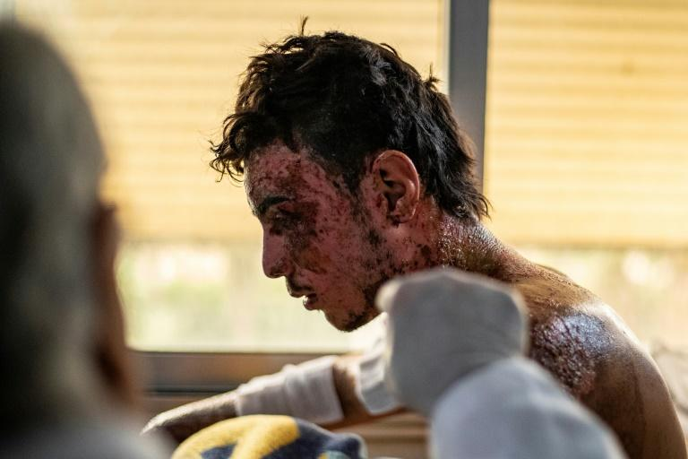 Kurdish fighter Suleiman Qahraman, 19, says that he suffered the burns that disfigure half his face in a Turkish attack using incendiary munitions he had never witnessed before (AFP Photo/DELIL SOULEIMAN)