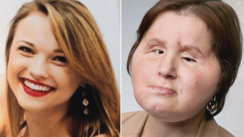 U.S. woman who shot herself receives face transplant