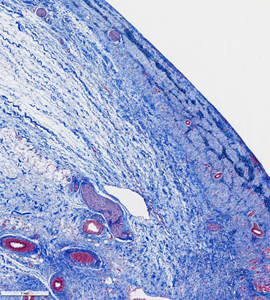 Photomicrograph with Mason's elastin stain of tissue from CTI ablation lesion (in figure 3).  Note the mature fibrosis in a 14-day old lesion with preservation of blood vessels, endothelium, nerve bundles and fat.