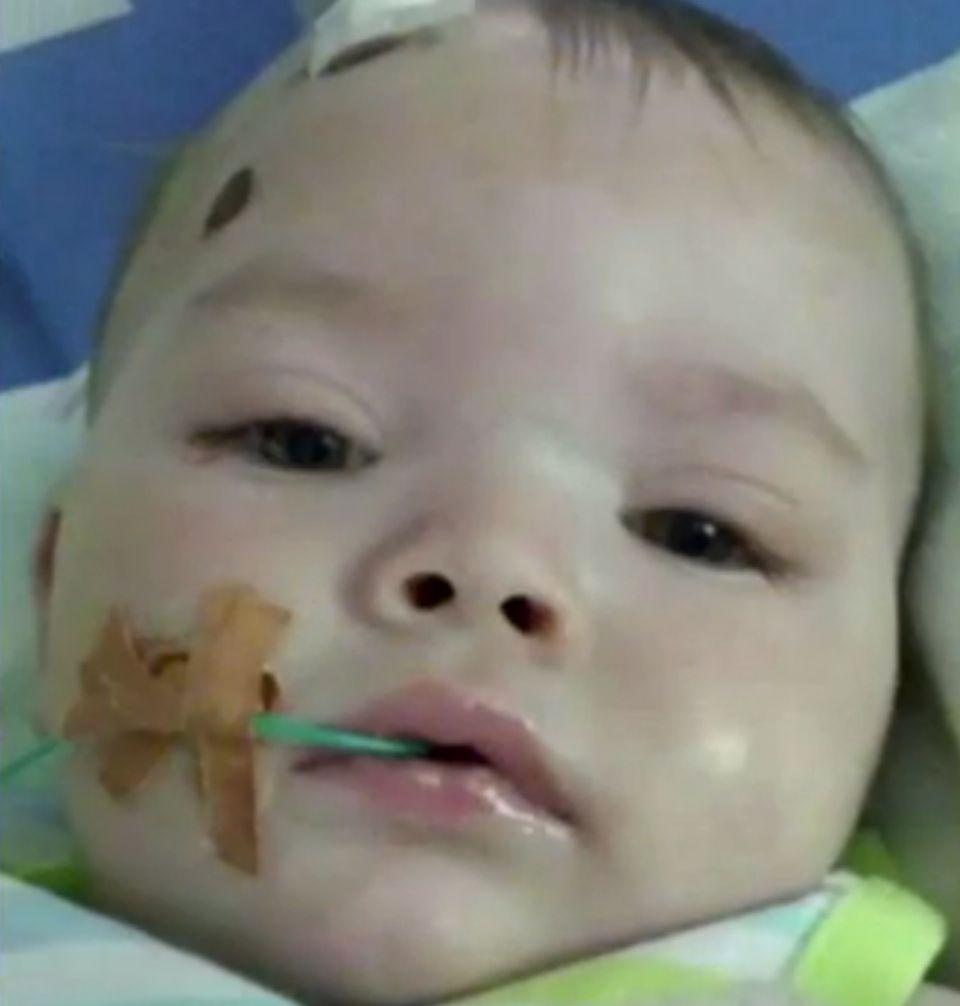 Bobby Webber was left with horrific lifelong injuries when he was just seven months old. Photo: 7 News
