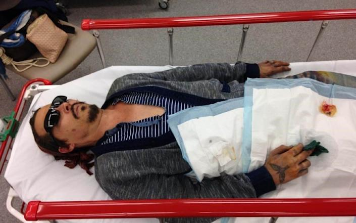 Depp was taken to hospital with a severed finger - Schillings/PA