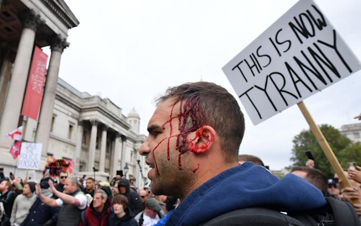 A demonstrator bleeds from a wound to his head as police move in to disperse protesters - Justin Tallis/AFP