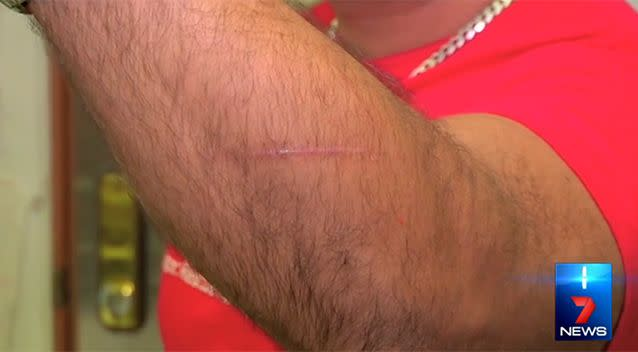 Mr Shukla suffered a cut to his arm in the incident. Photo: 7 News