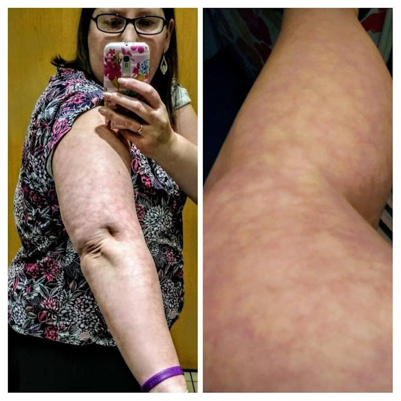 livedo reticularis rash on woman's arm