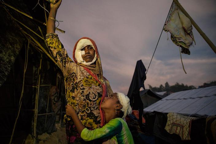 Mumtaz Begum, 30, with bandages covering her wounds, is held by her daughter Rosia, 8, on Oct. 15, standing outside their makeshift tent in Balukhali camp, Cox's Bazar. Mumtaz arrived over a month ago from Myanmar. She had suffered injuries after being attacked with a machete and burned when Burmese military men torched their house with everyone inside. She says that they locked the door, so she had to crawl out to escape to survive. She lost six members of her family, including three sons and one daughter. (Photo: Paula Bronstein/Getty Images)