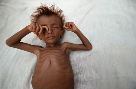 The Wider Image: Risk of famine looms in Yemen