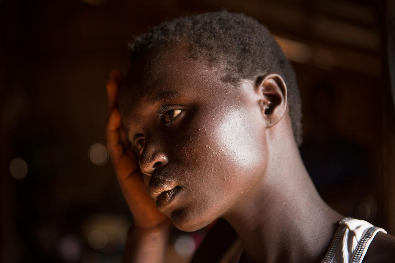 <p>At the Nyumanzi transit center in Adjumani District in Gulu, Uganda, Esther Ababiku, 16, is one of the many girls who lost her parents, forced to flee on her own unaccompanied and vulnerable to sexual attacks. She lives with other teens who are also orphans of the war. (Photograph by Paula Bronstein) </p>
