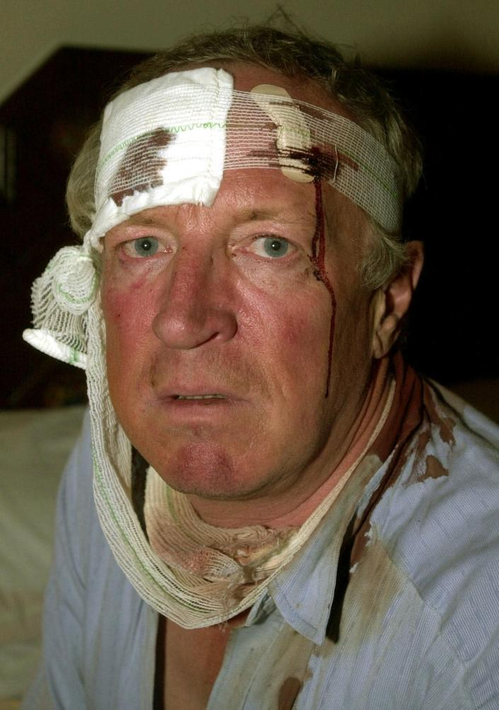 FILE - In this Dec. 8, 2001 file photo, veteran Robert Fisk, a British journalist working for the London daily, The Independent, is pictured in his hotel room in Quetta, Pakistan, after being beaten by a mob on the road linking the border town of Chaman to Quetta. Fisk, one of the best-known Middle East correspondents who spent his entire career reporting from the troubled region and won accolades for challenging mainstream narratives died Sunday at a hospital in Dublin after a short illness. He was 74. (AP Photo/Hussein Malla, File)