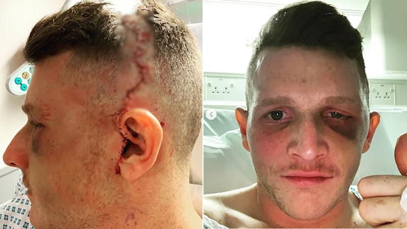 English hockey star Sam Walsh, pictured, shared photos of himself after painful surgery on his eye socket.