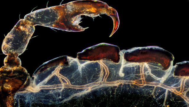 The rear leg, claw, and respiratory trachea (windpipe) of a hog louse (Haematopinus suis). Image Courtesy: Frank Reiser/Nikon Small World photomicrography Competition