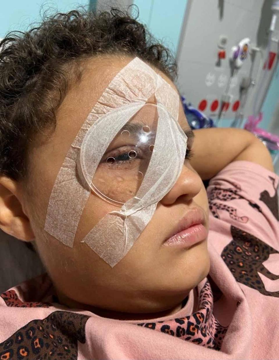 Scarlet healing from her eye operation. PA REAL LIFE COLLECT