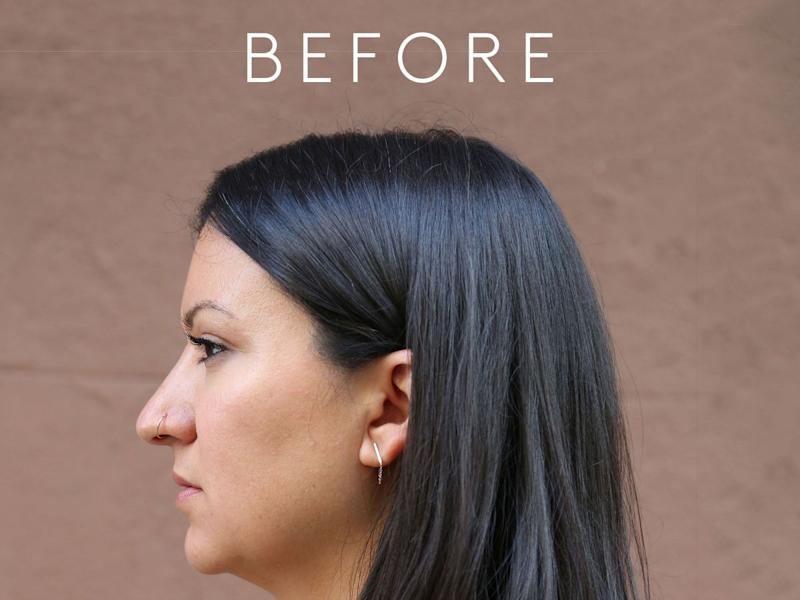 I Got A Chin Transformation — Here's What It Looked Like