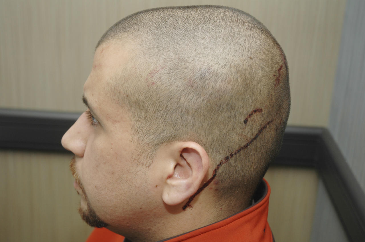 This Feb. 27, 2012 photo released by the State Attorney's Office shows George Zimmerman, the neighborhood watch volunteer who shot Trayvon Martin, with blood on the back of his head. The photo and reports were among evidence released by prosecutors that also includes calls to police, video and numerous other documents. The package was received by defense lawyers earlier this week and released to the media on Thursday, May 17, 2012. (AP Photo/State Attorney's Office)