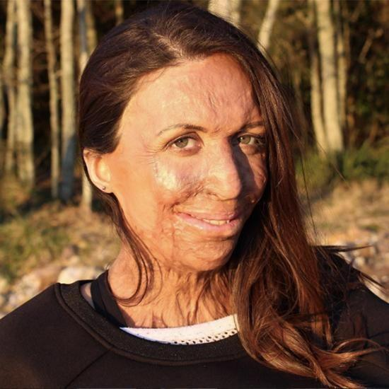 Turia Pitt has opened up on the sixth anniversary of the marathon bushfire which nearly killed her. Photo: Instagram