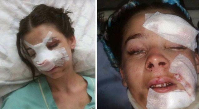 The 24-year-old suffered bleeding to the brain and a number of breaks. Photo: GoFundMe