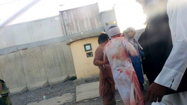 PHOTO: Injured people are evacuated from the area after an explosion outside the Kabul Airport's Abbey gate in Kabul, Aug. 26, 2021. (Ali Hassani via Storyful)