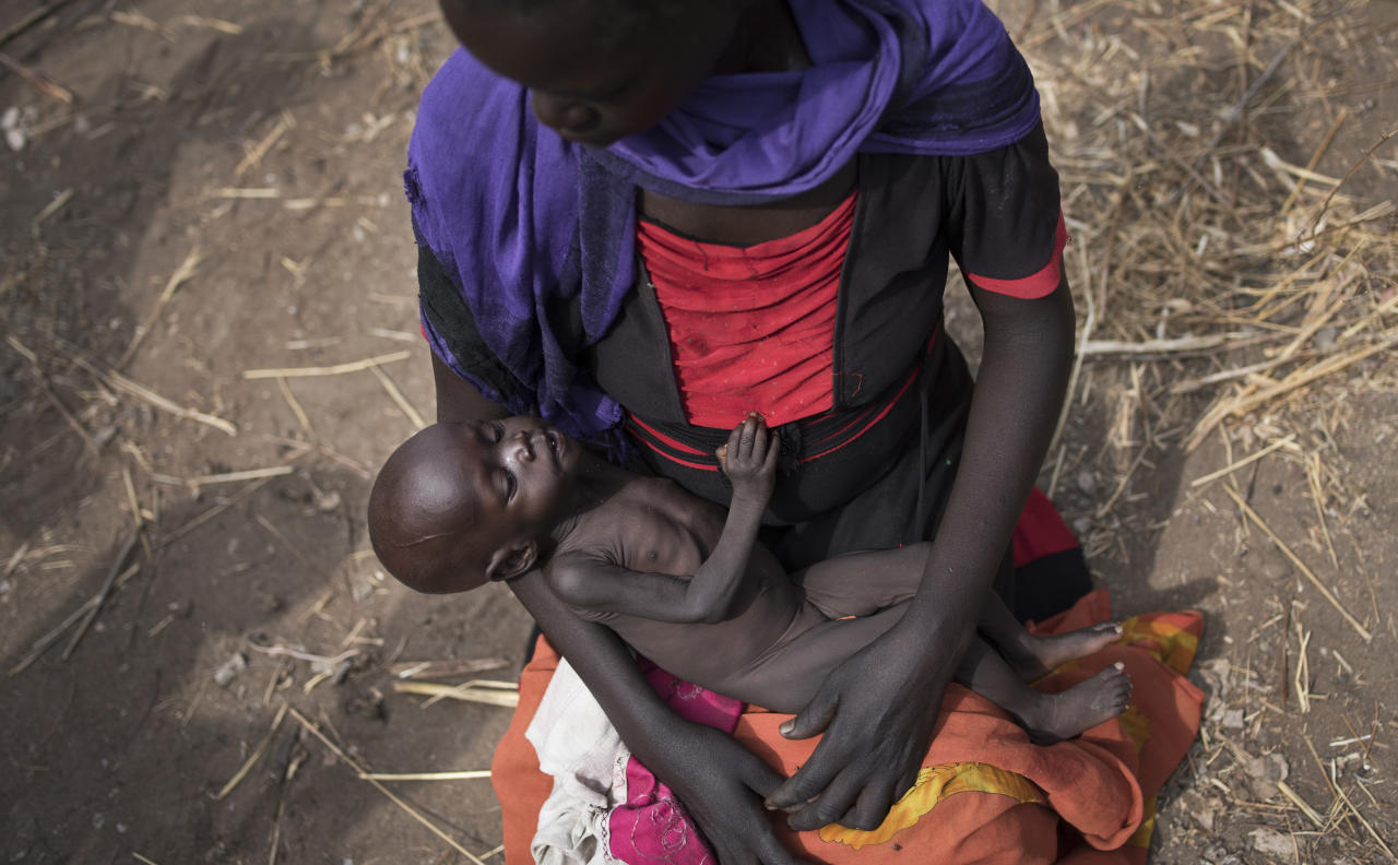 "FILE - In this Wednesday, April 5, 2017 file photo, Adel Bol, 20, cradles her 10-month-old daughter Akir Mayen at a food distribution site in Malualkuel, in the Northern Bahr el Ghazal region of South Sudan. The new American director of the World Food Program, David Beasley, called the suffering in South Sudan's famine ""deplorable"" as he visited the country Tuesday, May 23, 2017, and called on the government to allow aid groups safe access. (AP Photo, File)"