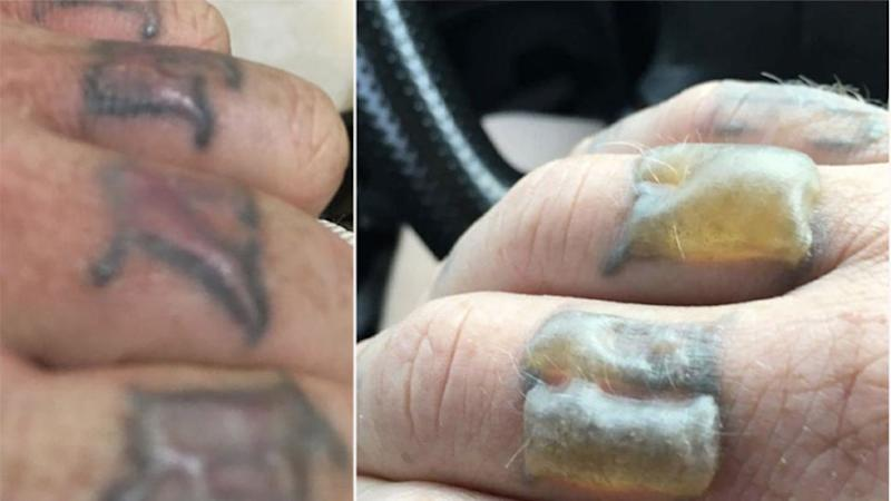 Before and after - Cameron Maltby has waned about tattoo removal after he was left with blistered hands. Photo: Cameron Maltby