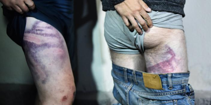 "Detained protesters show traces of what they said were beatings as they leave the Okrestina prison in Minsk in the early morning of August 14, 2020. <p class=""copyright"">SERGEI GAPON/AFP via Getty Images</p>"
