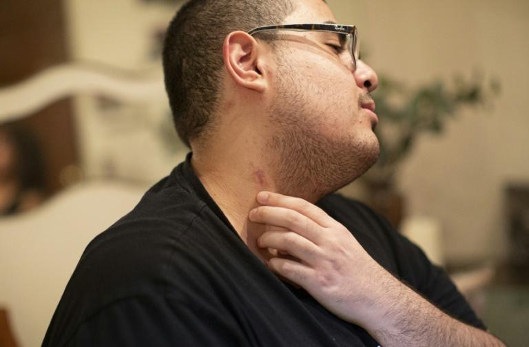 Gregory Rodriguez nearly died from vaping THC; he show scars on his neck from where tubes to oxygenate his blood were inserted (AFP Photo/Kena Betancur)
