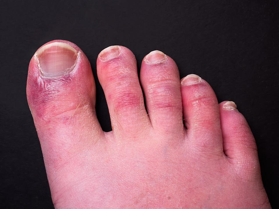 Researchers have pinpointed what causes the chillblain-type legions on the foot. (Getty Images)