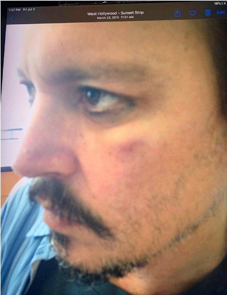 A photo of Johnny Depp with injuries allegedly sustained from Amber Heard during an incident in Los Angeles in March 2015, and included as an exhibit in the trial of Depp's libel suit in London.
