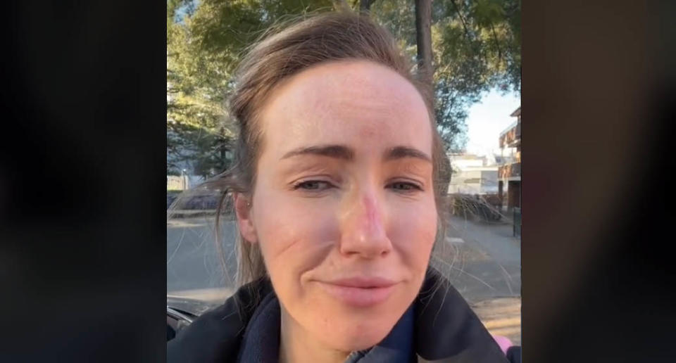 A NSW emergency department nurse has shared a video showing the harrowing effect of wearing full PPE for 12 hours straight. Source: TikTok/injector_chronicles