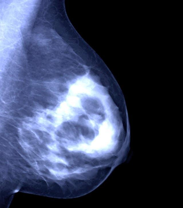 The olaparib trial has been described as a major breakthrough in the battle against breast cancer (Rui Vieira/PA)