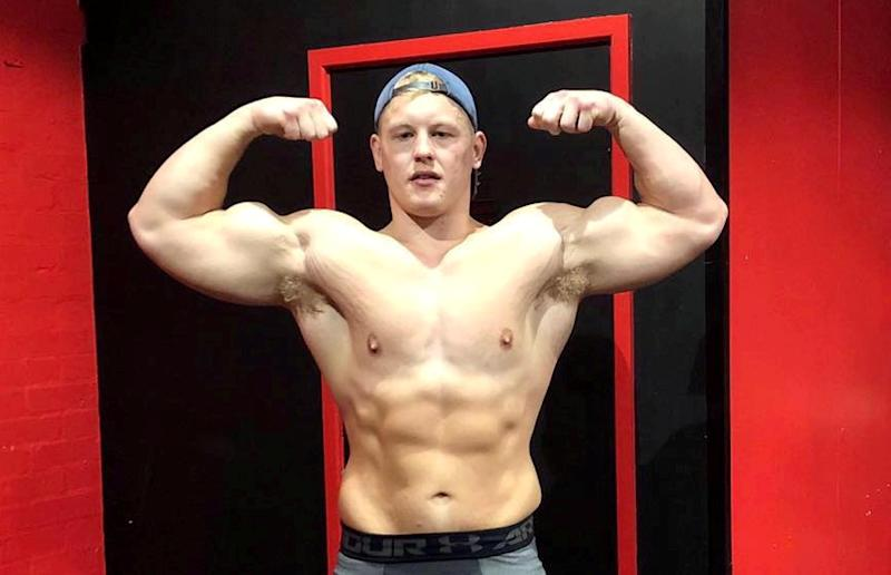 Brandon Pickup, pictured recently, lost nine stone after he ditched the 10,000 calorie a day diet he was copying from bodybuilders he followed online. [Photo: SWNS]