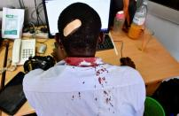 Paul Murungi, a journalist working with The New Vision newspaper is seen at their offices after he was injured following an attack by security officials in Kampala
