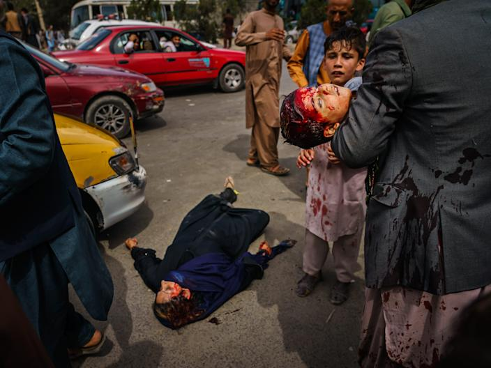 A man carries a bloodied child, as a woman lays wounded on the street at the Kabul Airport