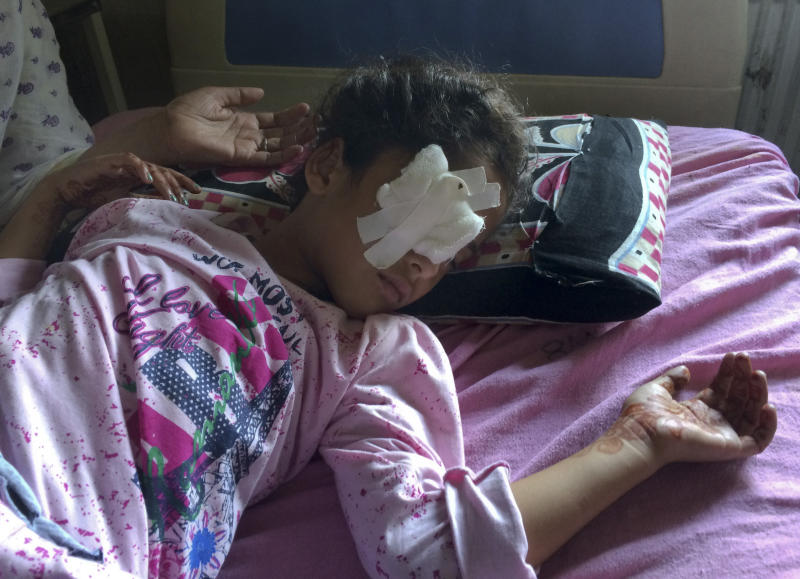 Six year old Kashmiri girl Muneefa Nazir, lies at a hospital bed after she was wounded by a marble shot from a sling used by Indian paramilitary soldiers in Srinagar Indian controlled Kashmir, Tuesday, Aug. 13, 2019.  Indian Prime Minister Narendra Modi defended his government's controversial measure to strip the disputed Kashmir region of its statehood and special constitutional provisions in an Independence Day speech Thursday, as about 7 million Kashmiris stayed indoors for the 11th day of an unprecedented security lockdown and communications blackout. (AP Photo/ Aijaz Hussain)