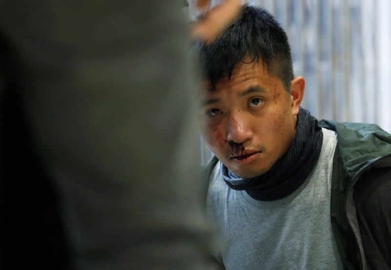 An injured anti-government protester is seen detained inside the Sheung Shui shopping mall in Hong Kong