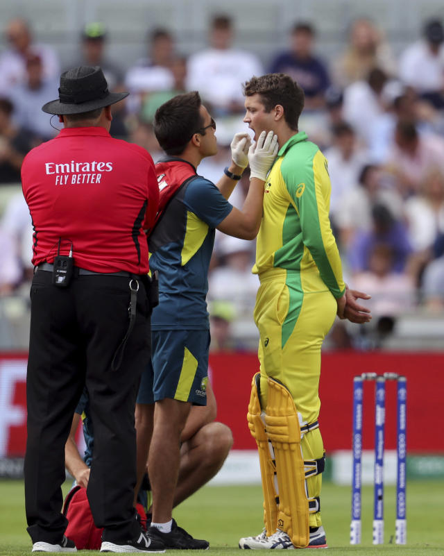 Australia's batsman Alex Carey, right, gets some treatment form a team-medic after hit on his chin by a delivery from England's Chris Woakes during the Cricket World Cup semi-final match between Australia and England at Edgbaston in Birmingham, England, Thursday, July 11, 2019. (AP Photo/Rui Vieira)