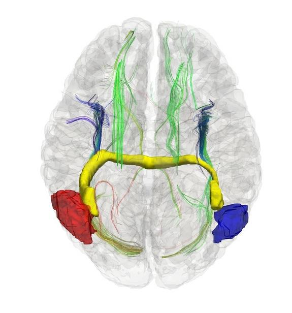 People Missing Brain Wiring Form Unique Neural Connections