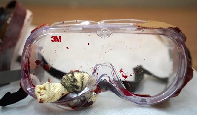 Goggles worn by the girl who suffered a serious eye injury during anti-government protests. Photo: QR