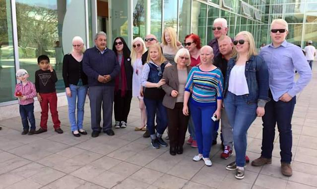 Movimiento Albino Latino is an organization geared toward albinos in Guadalajara, Mexico. <em> </em>(Photo: Courtesy of Ruby Vizcarra)