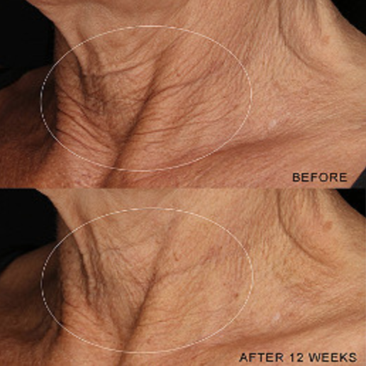 The results of a 12-week trial of the Dermalogica Neck Fit Contour Serum