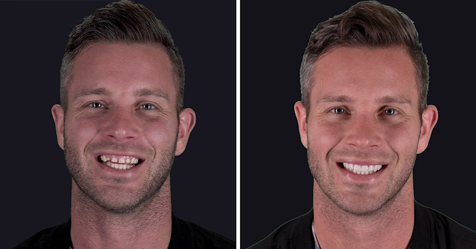 Before and after Jake Edwards teeth transformation.