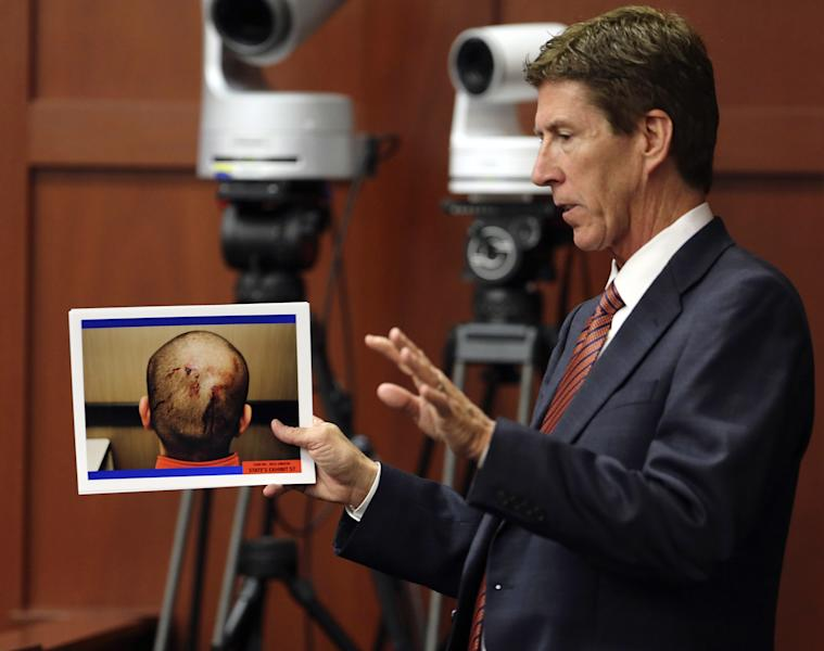 Defense attorney Mark O'Mara displays photos of George Zimmerman, taken the night of the shooting of Trayvon Martin, during cross examination of Jacksonville medical examiner Valerie Rao during Zimmerman's trial in Seminole circuit court, in Sanford, Fla., Tuesday, July 2, 2013. Zimmerman is charged with second-degree murder in the shooting death of Trayvon Martin. (AP Photo/Orlando Sentinel, Joe Burbank, Pool)