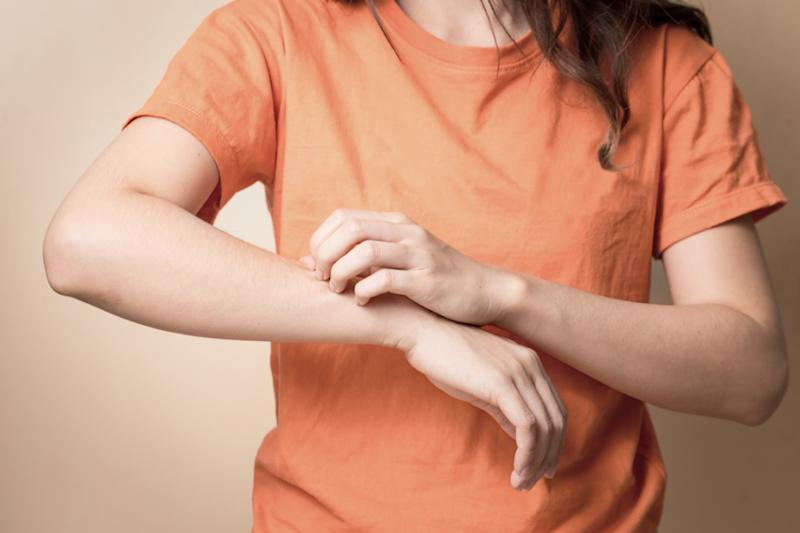 Women scratch itchy arm with hand.