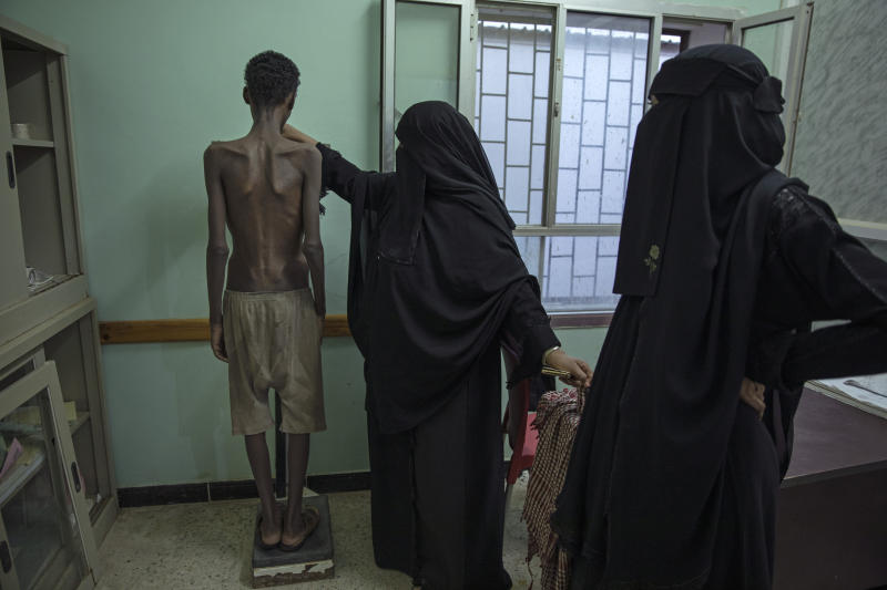 In this Aug. 1, 2019 photo, 19-year-old Ethiopian migrant Mohammed Hussein, who is severely malnourished from imprisonment by smugglers, stands on a scale at the Ras al-Ara Hospital in Lahj, Yemen. He weighs 31 kilograms (68 pounds). Starvation is a punishment used by the traffickers to wear down their victims. (AP Photo/Nariman El-Mofty)