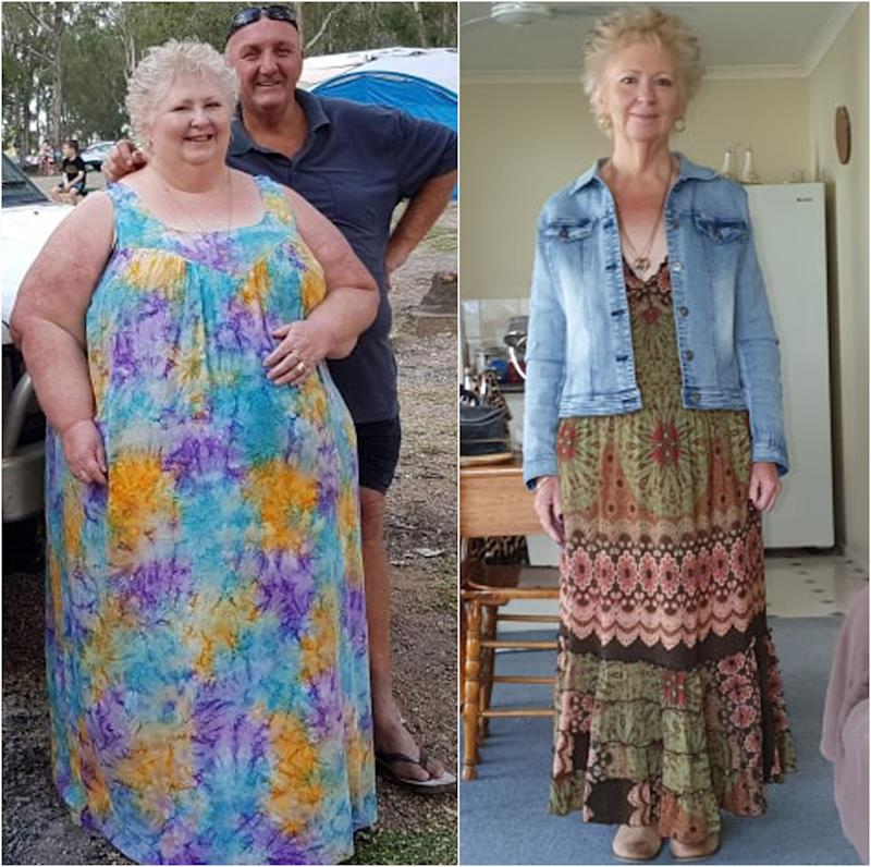 Queensland woman Carolyn Zurvas pictured before and after weight loss